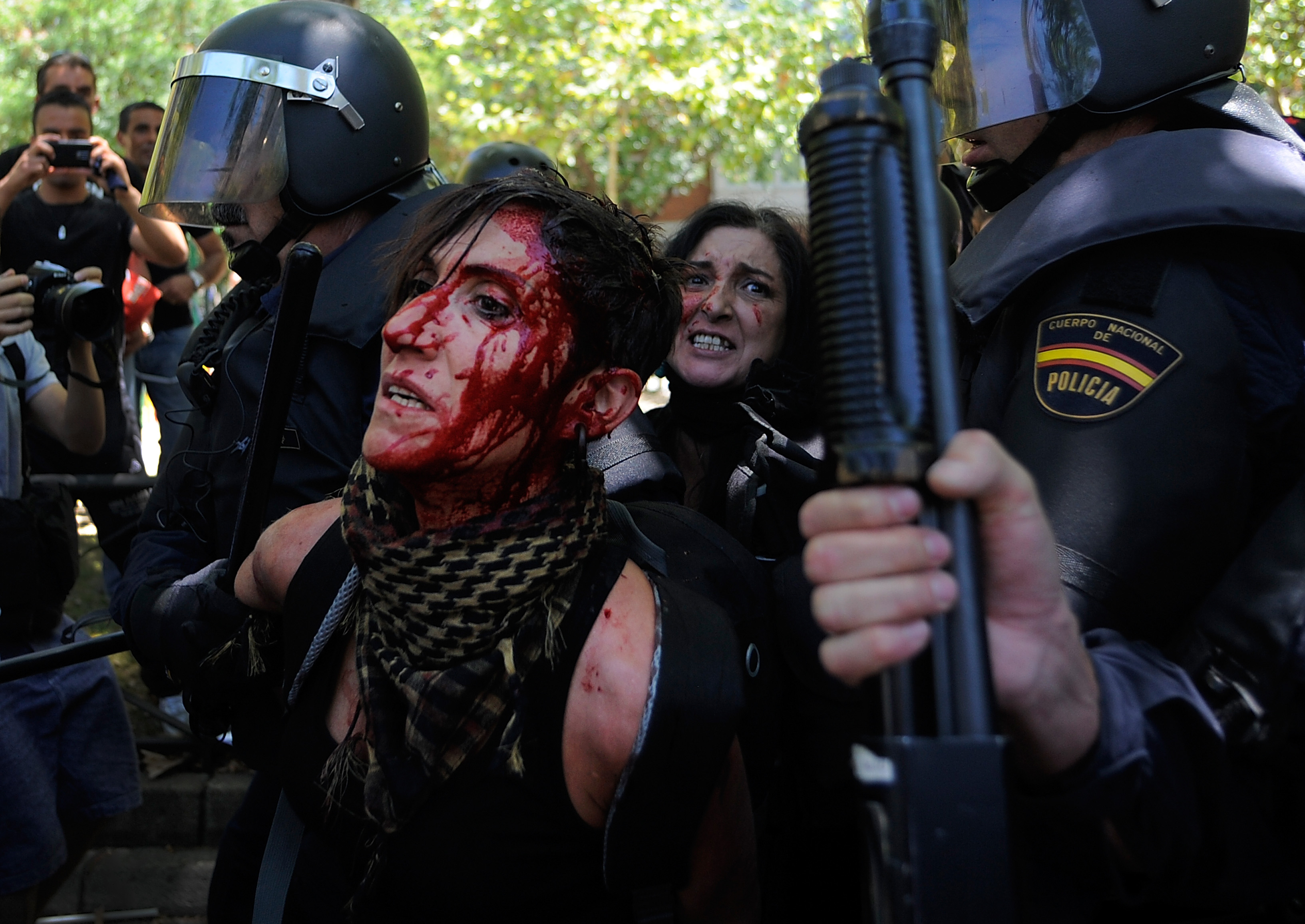 Bloodied girl in Miners demo